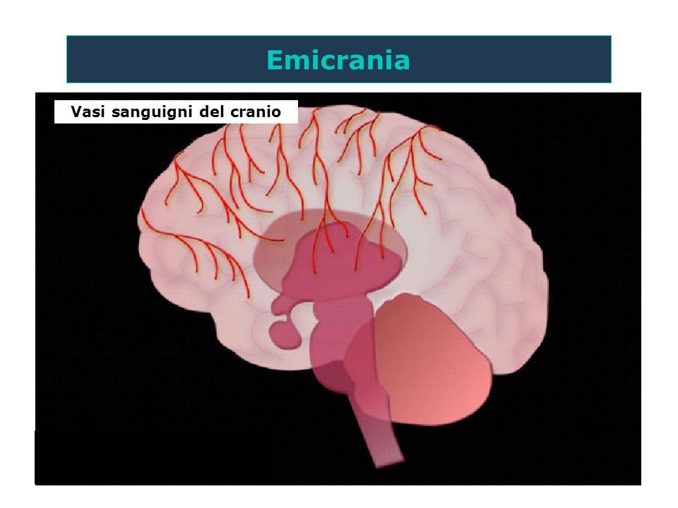 Vasi sanguigni del cranio Emicrania I meccanismi rigorosi suggeriti nella fisiopatologia dellemicrania sono teorici