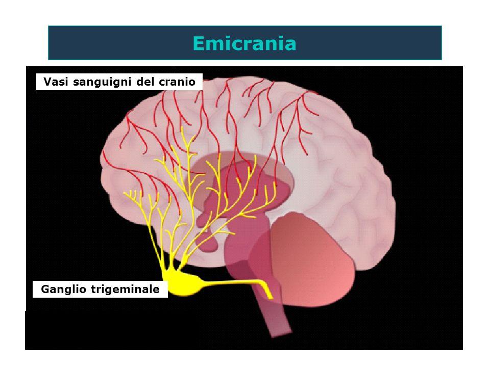 Vasi sanguigni del cranio Ganglio trigeminale Emicrania I meccanismi rigorosi suggeriti nella fisiopatologia dellemicrania sono teorici