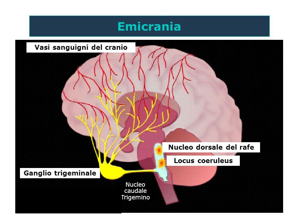 Ganglio trigeminale Vasi sanguigni del cranio Nucleo dorsale del rafe Locus coeruleus I meccanismi rigorosi suggeriti nella fisiopatologia dellemicran
