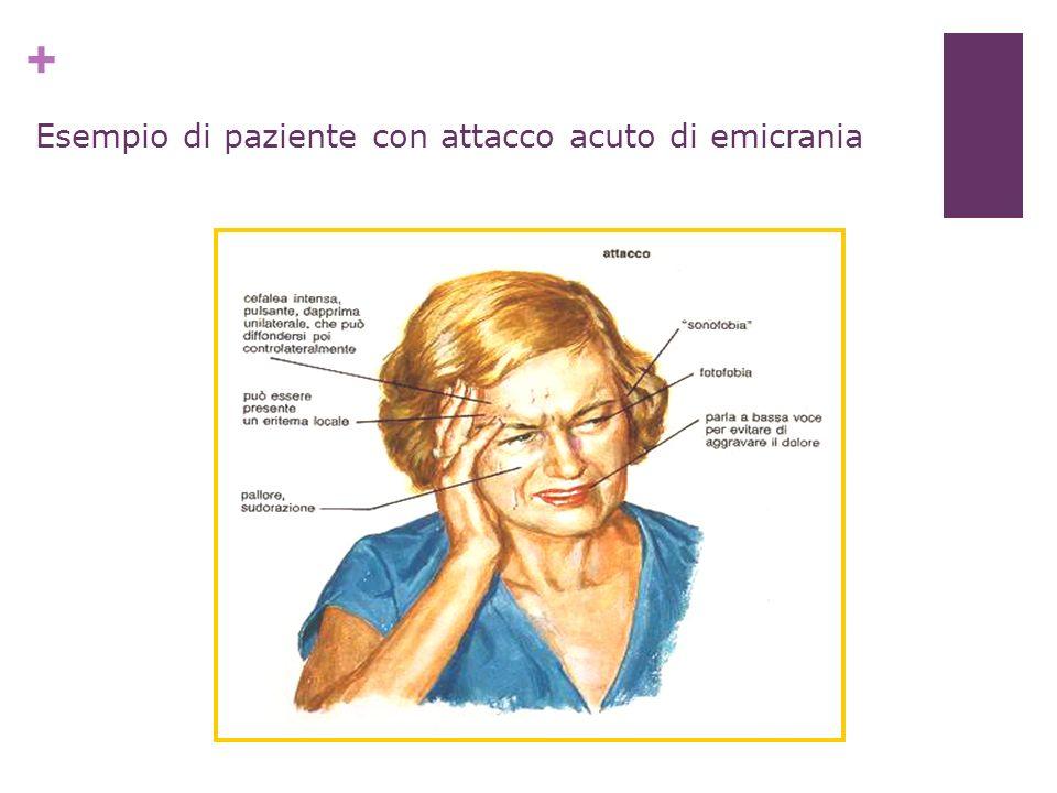 + Esempio di paziente con attacco acuto di emicrania
