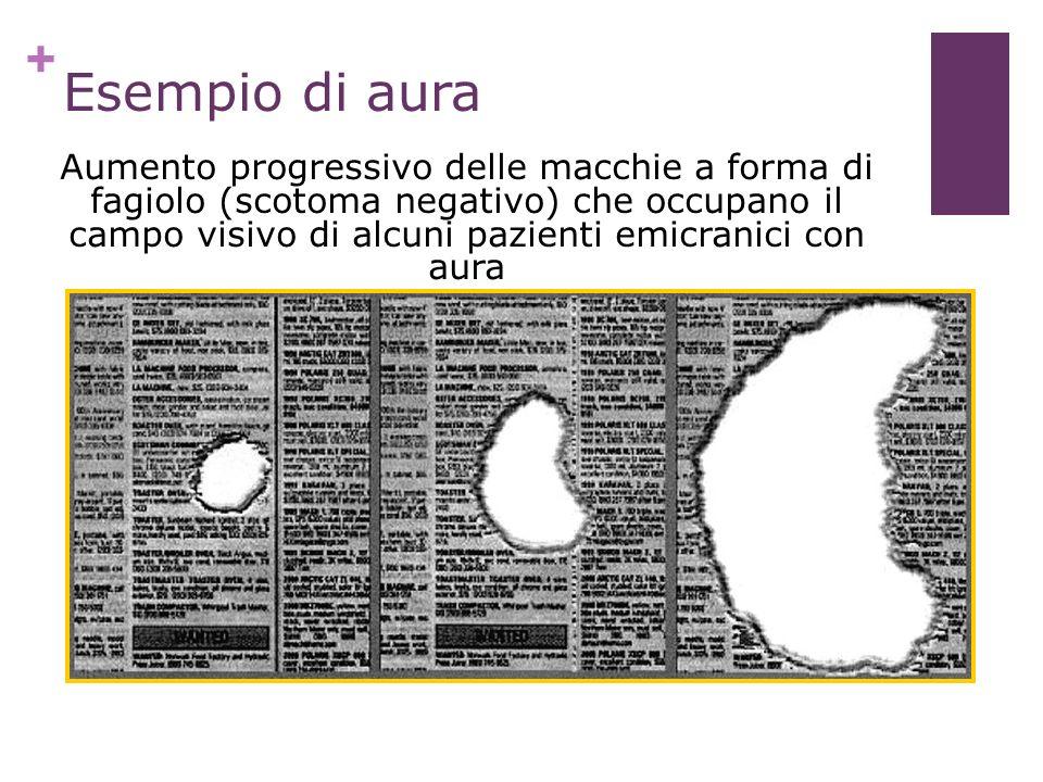 + Lashley 1941 Aumento progressivo delle macchie a forma di fagiolo (scotoma negativo) che occupano il campo visivo di alcuni pazienti emicranici con