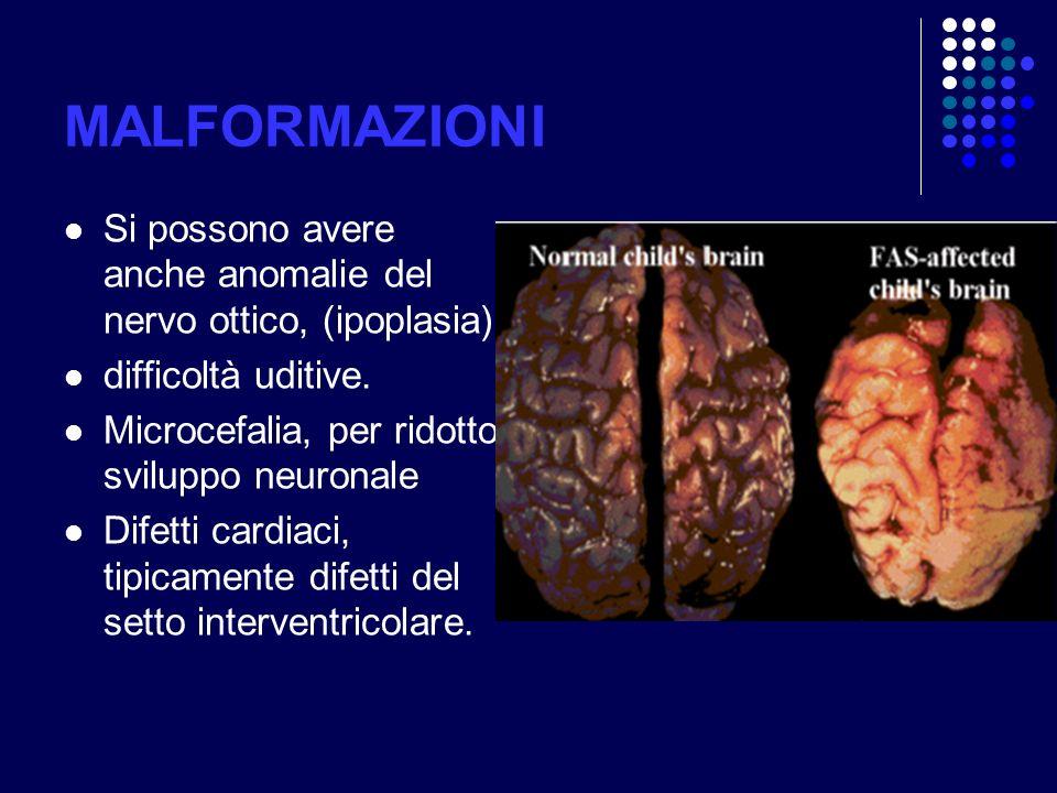 MALFORMAZIONI Si possono avere anche anomalie del nervo ottico, (ipoplasia) difficoltà uditive. Microcefalia, per ridotto sviluppo neuronale Difetti c
