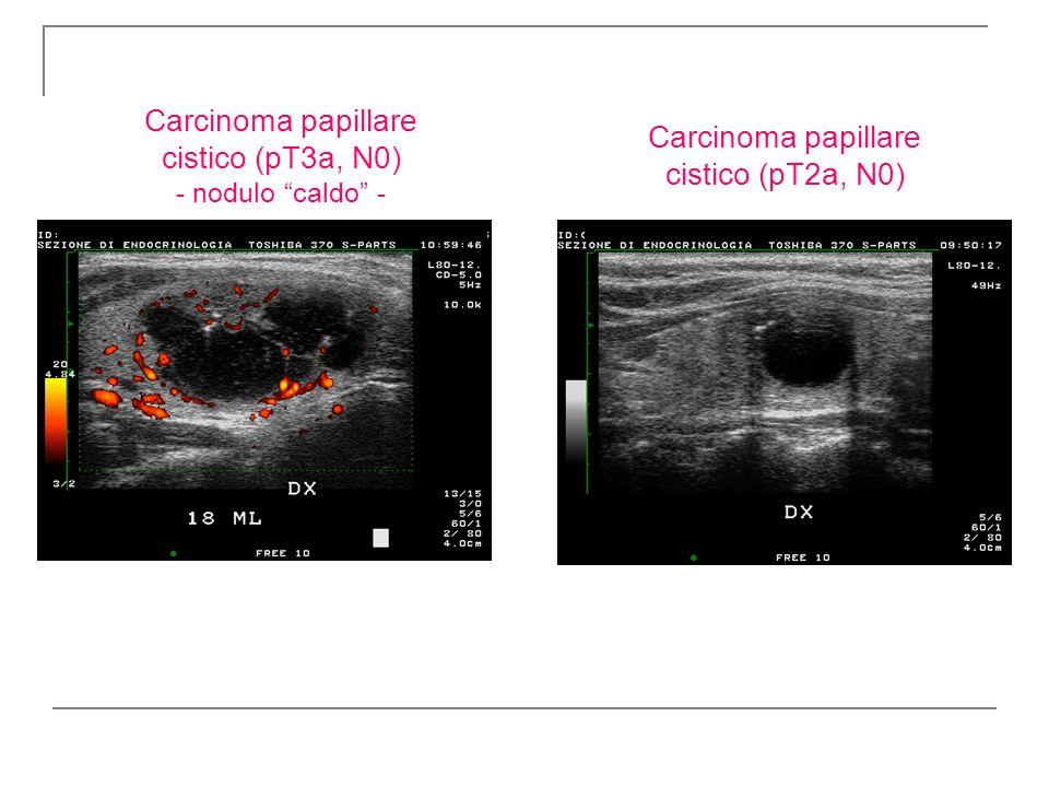 Carcinoma papillare cistico (pT3a, N0) - nodulo caldo - Carcinoma papillare cistico (pT2a, N0)