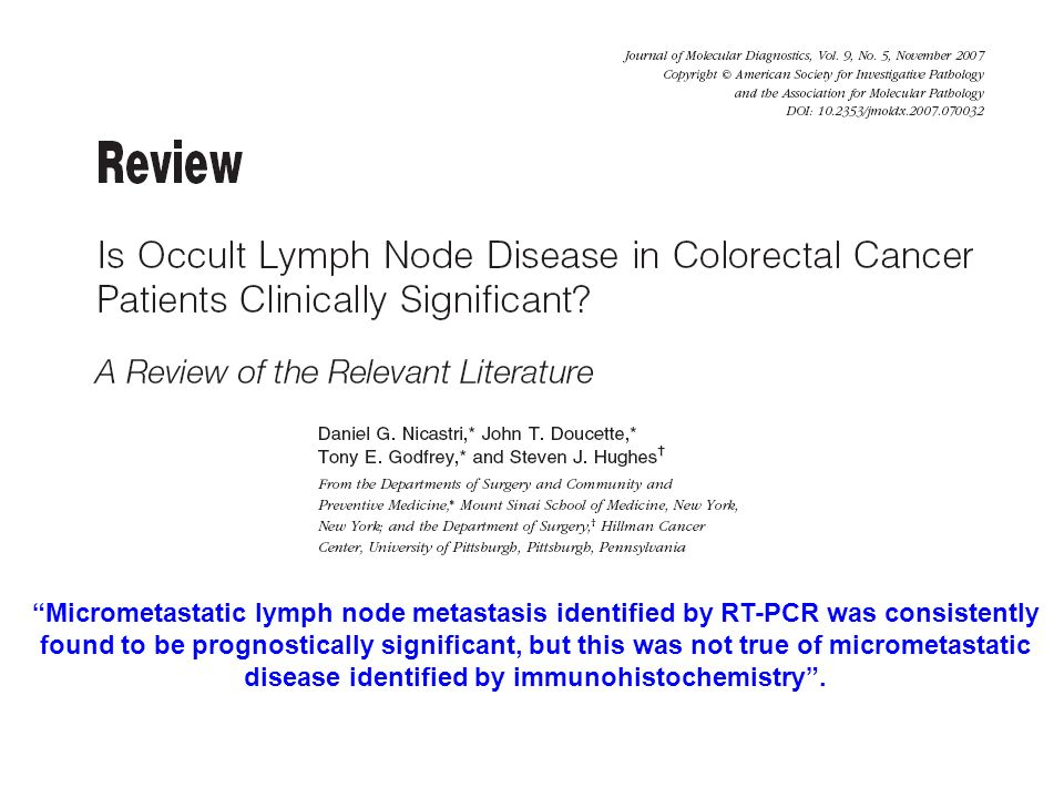 Micrometastatic lymph node metastasis identified by RT-PCR was consistently found to be prognostically significant, but this was not true of micrometa