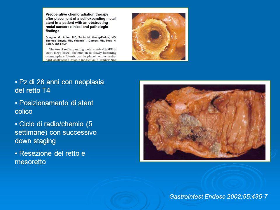 Pz di 28 anni con neoplasia del retto T4 Posizionamento di stent colico Ciclo di radio/chemio (5 settimane) con successivo down staging Resezione del
