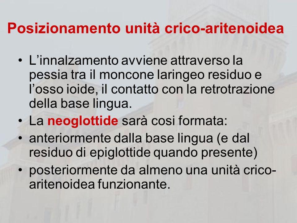 Posizionamento unità crico-aritenoidea Linnalzamento avviene attraverso la pessia tra il moncone laringeo residuo e losso ioide, il contatto con la re
