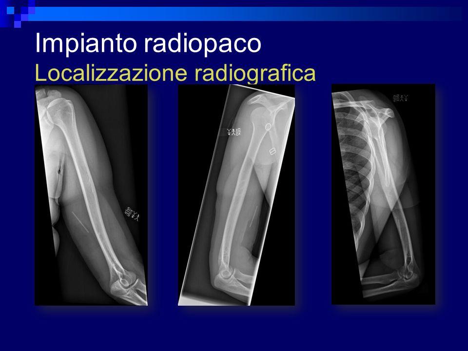 Impianto radiopaco Localizzazione radiografica