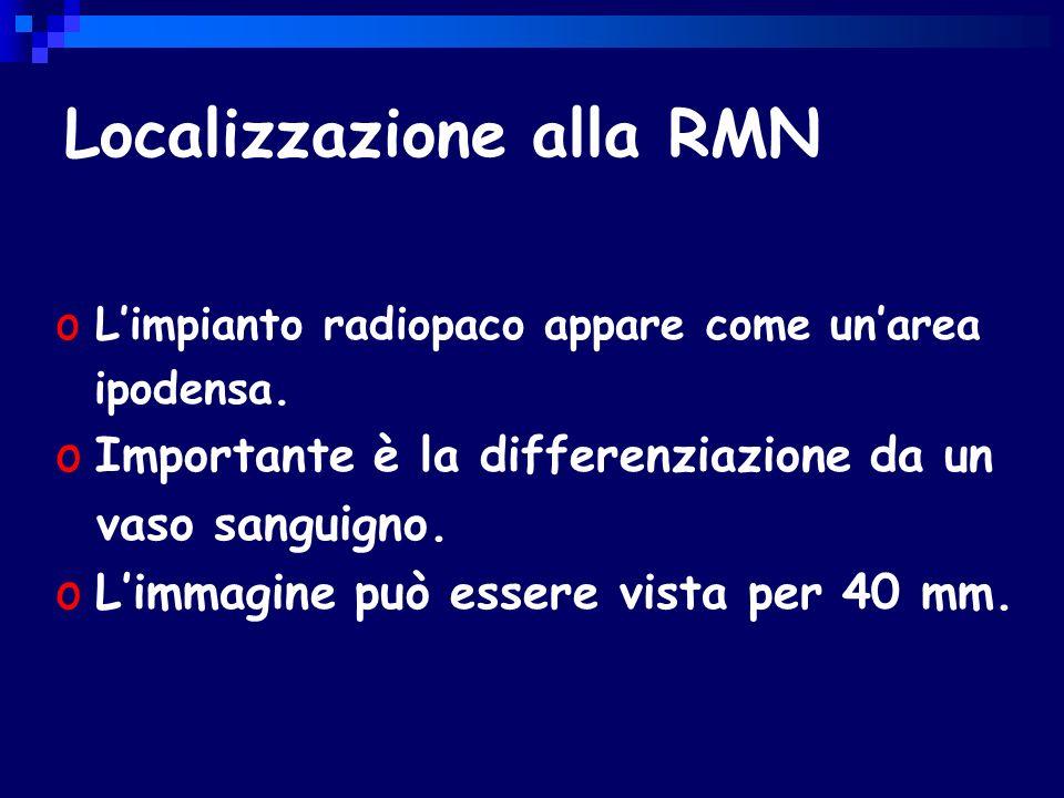 Localizzazione alla RMN o Limpianto radiopaco appare come unarea ipodensa.