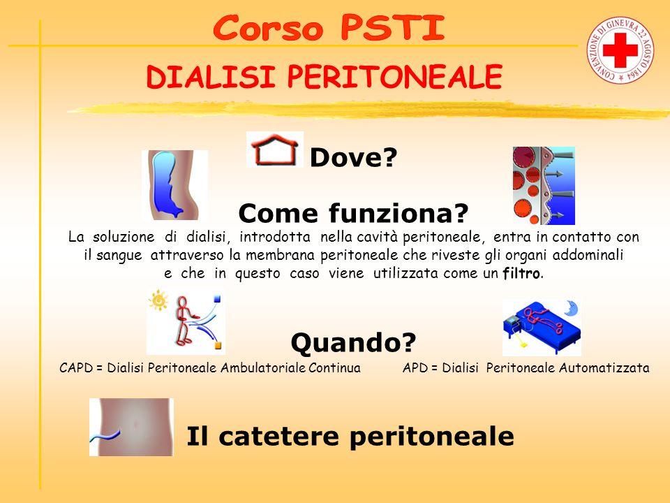 Dove? Come funziona? La soluzione di dialisi, introdotta nella cavità peritoneale, entra in contatto con il sangueattraverso la membrana peritoneale c