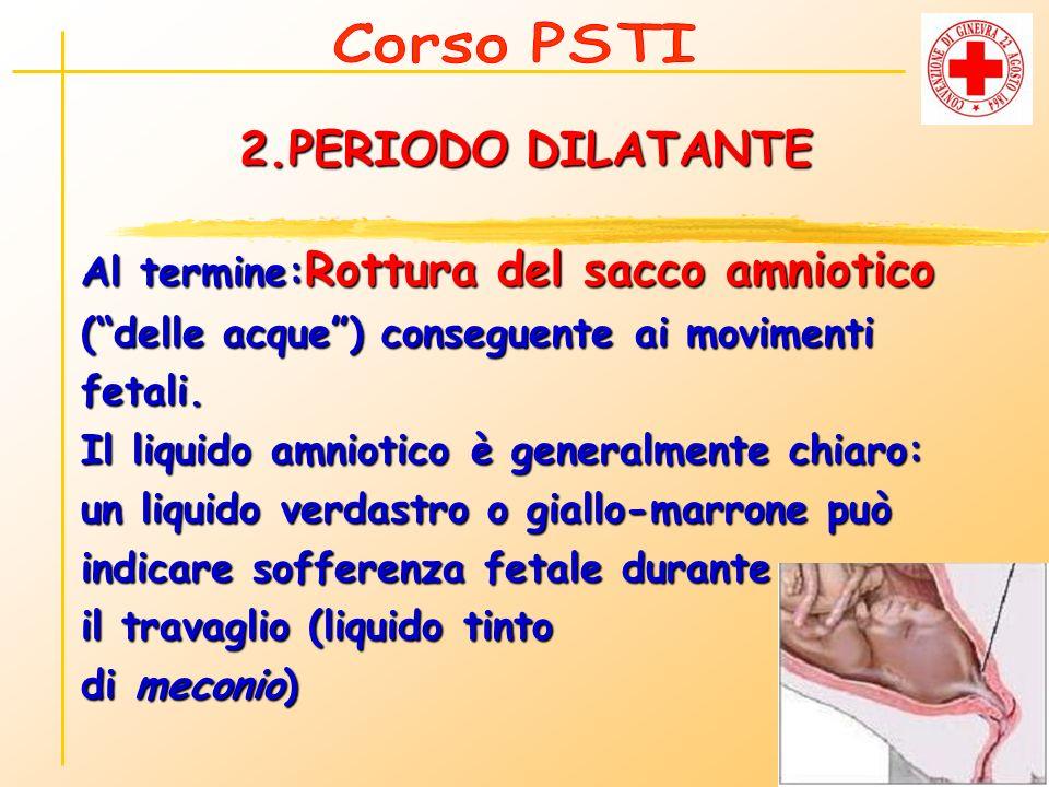 2.PERIODO DILATANTE Al termine: Rottura del sacco amniotico (delle acque) conseguente ai movimenti fetali. Il liquido amniotico è generalmente chiaro: