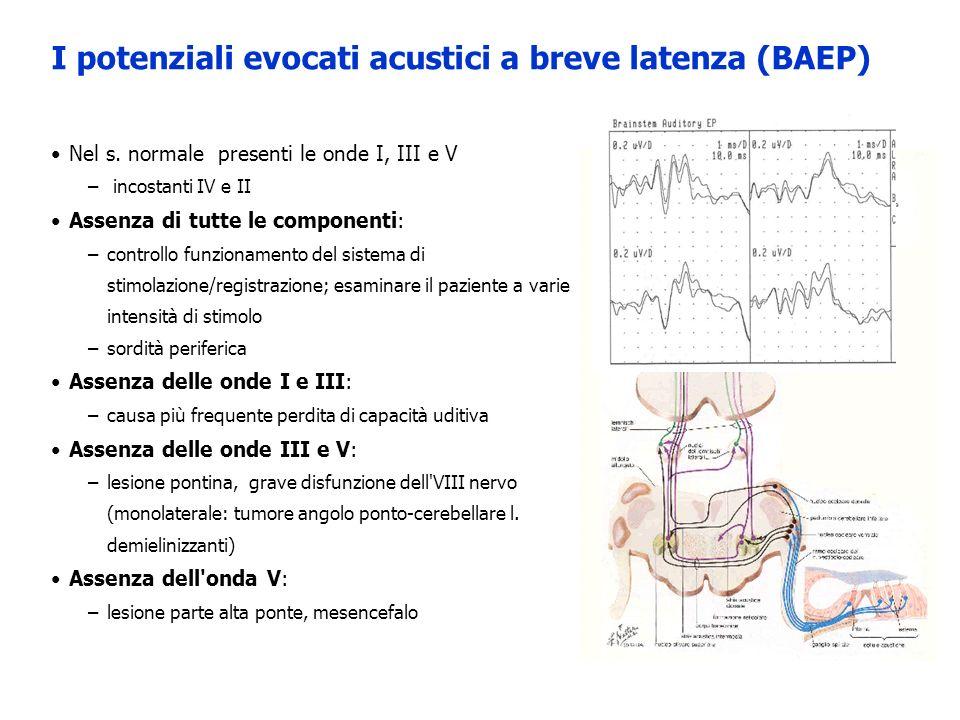 Nel s. normale presenti le onde I, III e V – incostanti IV e II Assenza di tutte le componenti: –controllo funzionamento del sistema di stimolazione/r