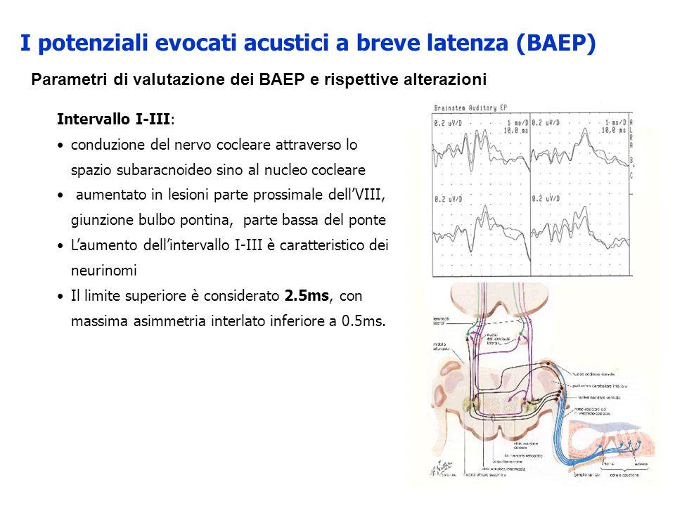 Intervallo I-III: conduzione del nervo cocleare attraverso lo spazio subaracnoideo sino al nucleo cocleare aumentato in lesioni parte prossimale dellV