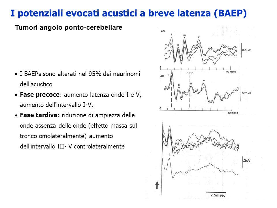 I BAEPs sono alterati nel 95% dei neurinomi dell'acustico Fase precoce: aumento latenza onde I e V, aumento dell'intervallo I-V. Fase tardiva: riduzio
