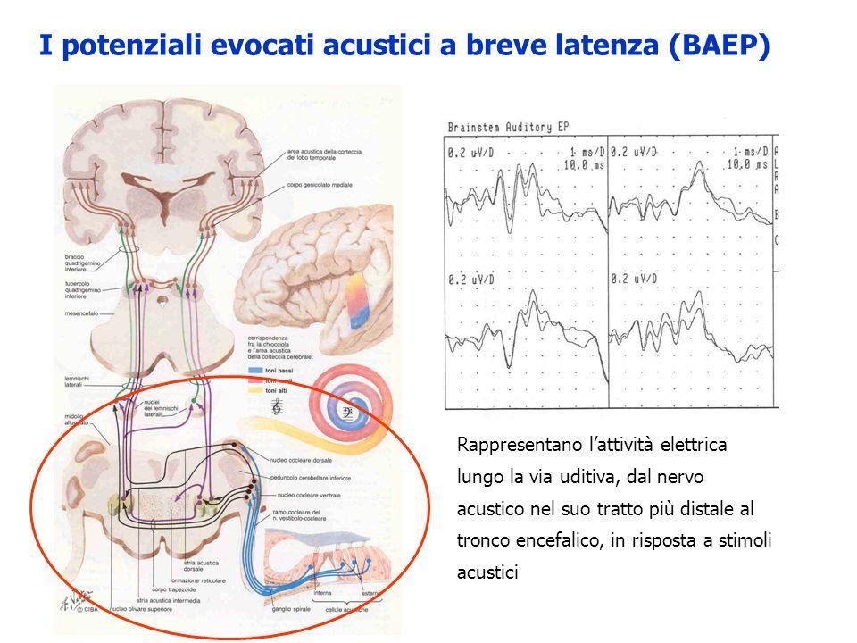Rappresentano lattività elettrica lungo la via uditiva, dal nervo acustico nel suo tratto più distale al tronco encefalico, in risposta a stimoli acus