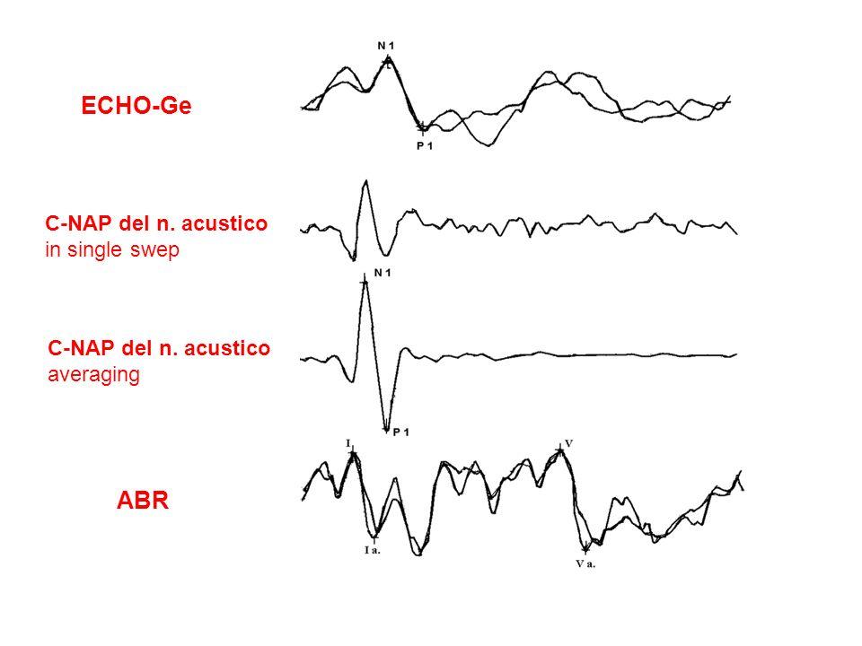ABR C-NAP del n. acustico averaging C-NAP del n. acustico in single swep ECHO-Ge
