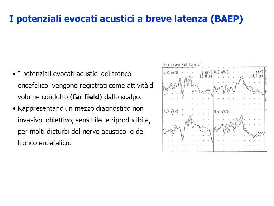 I potenziali evocati acustici del tronco encefalico vengono registrati come attività di volume condotto (far field) dallo scalpo. Rappresentano un mez