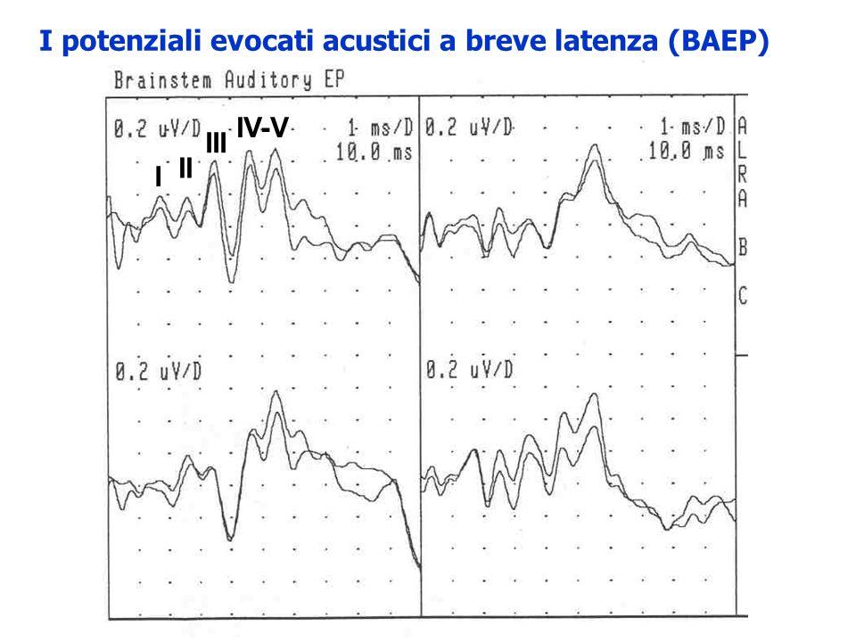 I potenziali evocati acustici a breve latenza (BAEP) Onda I: far-field potential della N1 del EcoG (potenziale dazione composto del nervo acustico)