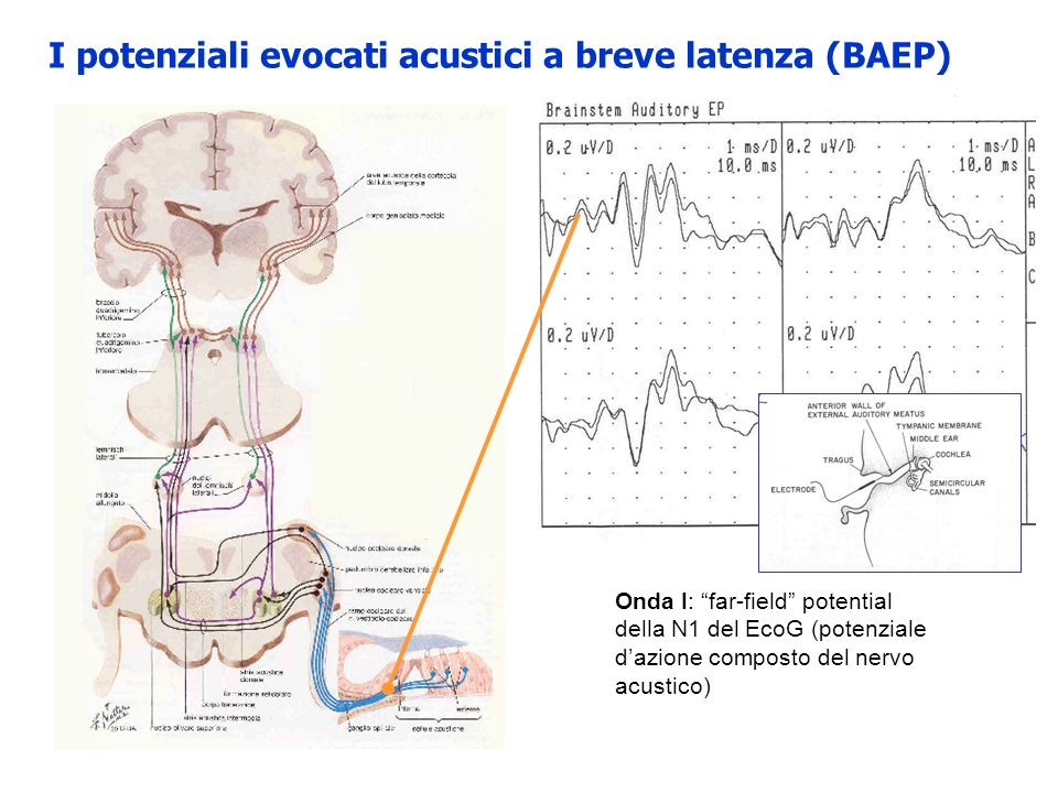 Intervallo I-III: conduzione del nervo cocleare attraverso lo spazio subaracnoideo sino al nucleo cocleare aumentato in lesioni parte prossimale dellVIII, giunzione bulbo pontina, parte bassa del ponte Laumento dellintervallo I-III è caratteristico dei neurinomi Il limite superiore è considerato 2.5ms, con massima asimmetria interlato inferiore a 0.5ms.