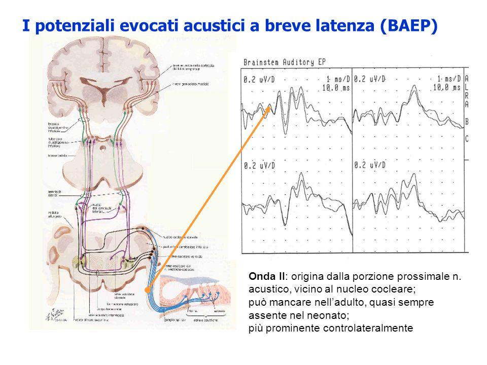 I potenziali evocati acustici a breve latenza (BAEP) Onda II: origina dalla porzione prossimale n. acustico, vicino al nucleo cocleare; può mancare ne