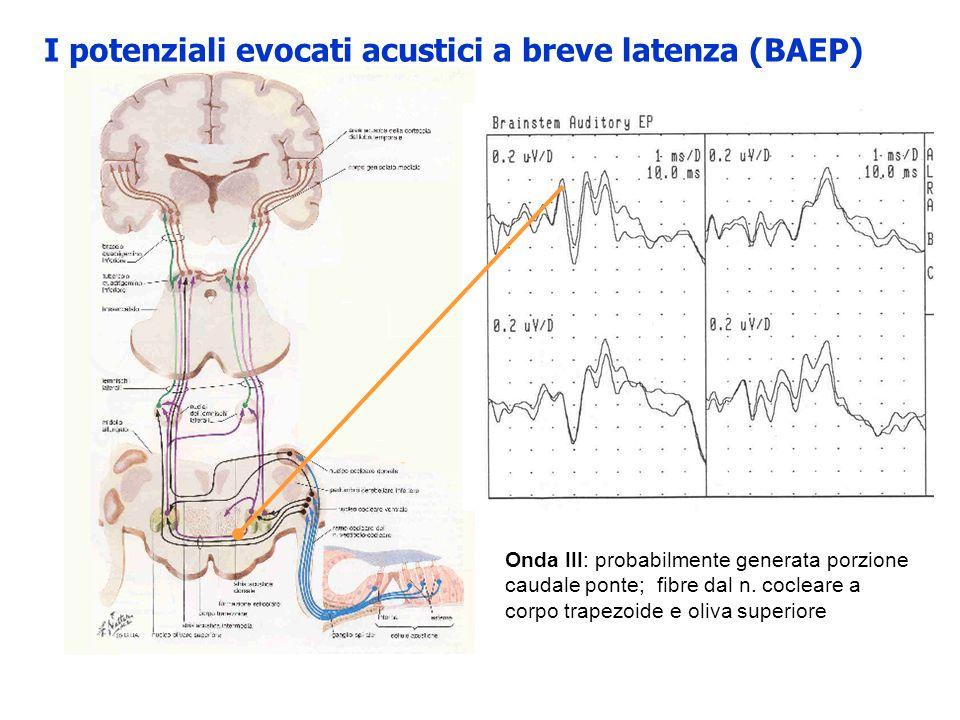 I potenziali evocati acustici a breve latenza (BAEP) Onda III: probabilmente generata porzione caudale ponte; fibre dal n. cocleare a corpo trapezoide