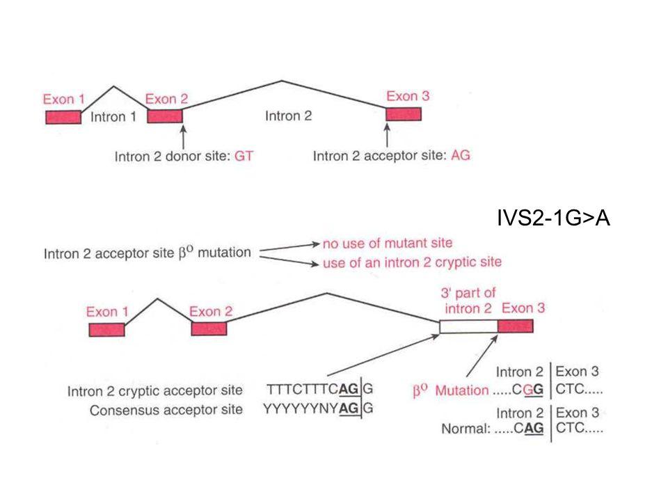 IVS2-1G>A