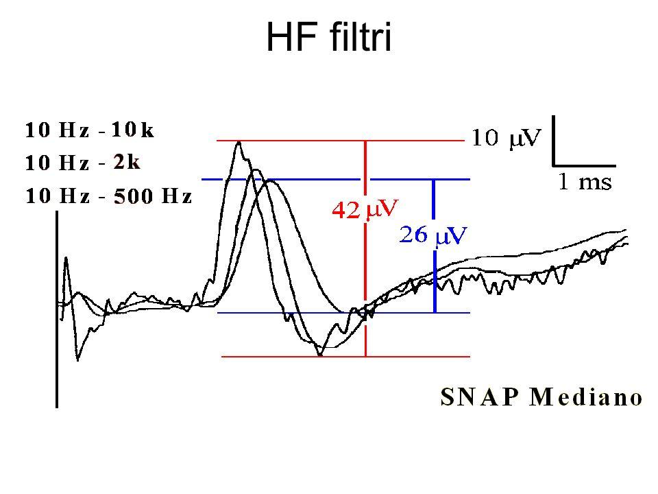 HF filtri