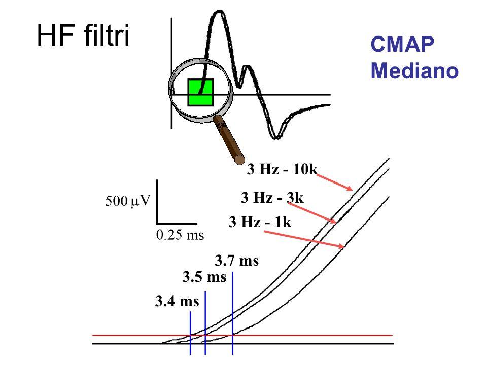 CMAP Mediano 3 Hz - 10k 3 Hz - 3k 3 Hz - 1k 3.5 ms 3.4 ms 3.7 ms