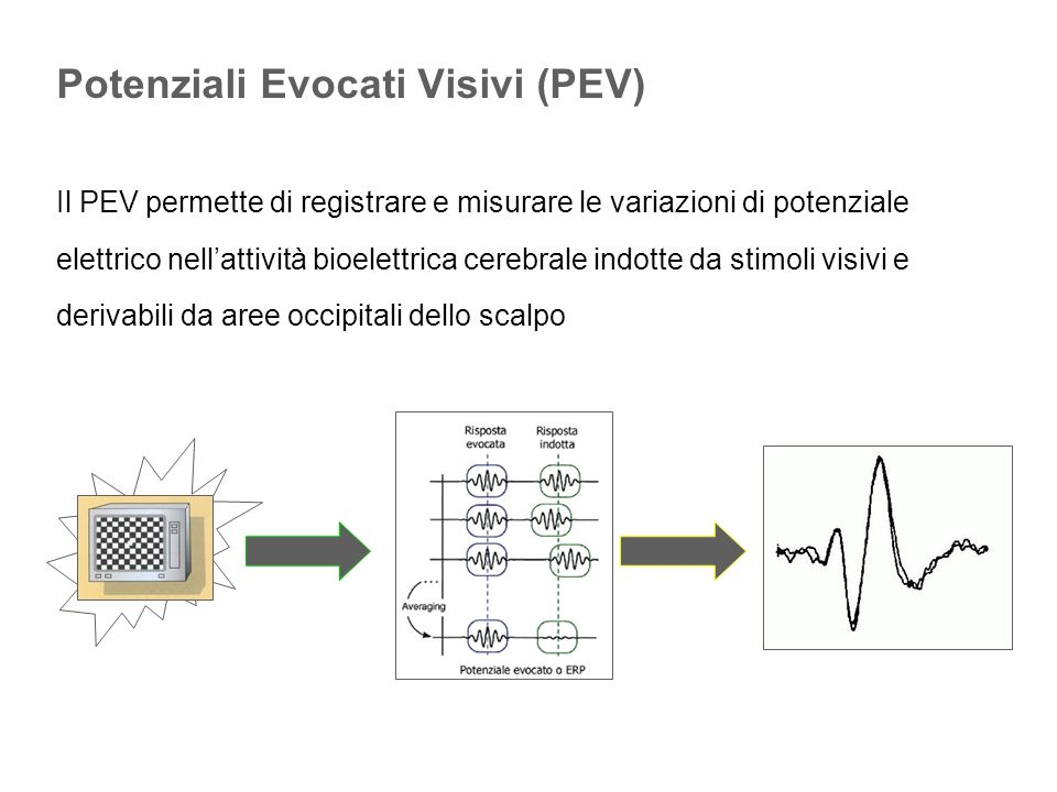 Elettroretinogramma da pattern (PERG)