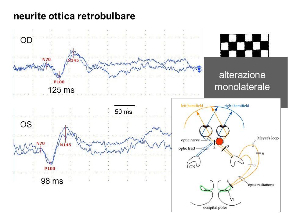 neurite ottica retrobulbare alterazione monolaterale OD OS 50 ms 125 ms 98 ms