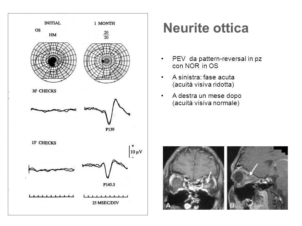 Neurite ottica PEV da pattern-reversal in pz con NOR in OS A sinistra: fase acuta (acuità visiva ridotta) A destra un mese dopo (acuità visiva normale