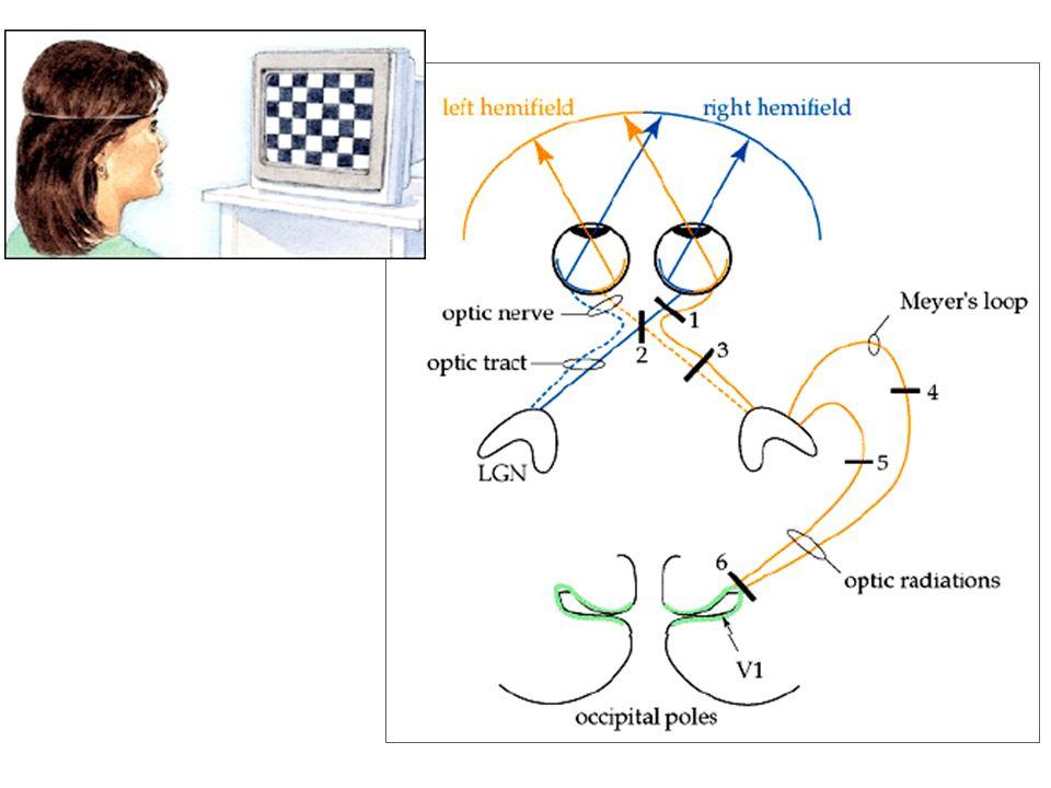 emianopsia omonima laterale destra sclerosi multipla