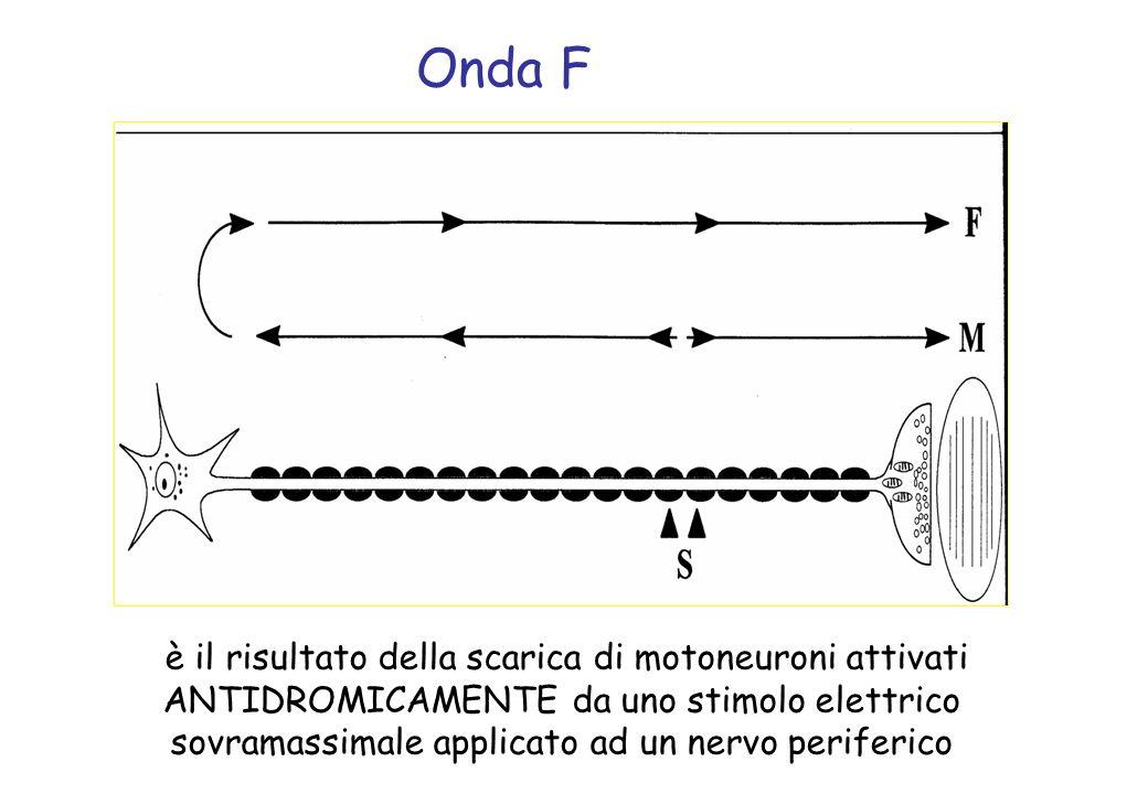 è il risultato della scarica di motoneuroni attivati ANTIDROMICAMENTE da uno stimolo elettrico sovramassimale applicato ad un nervo periferico Onda F