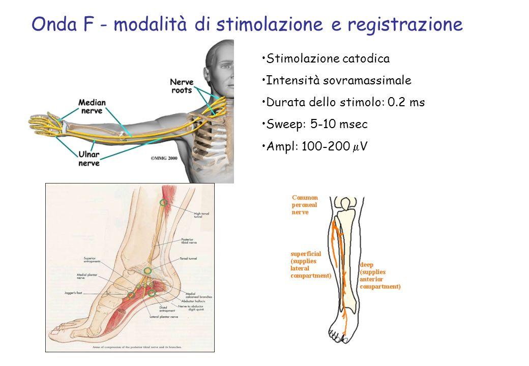 Onda F - modalità di stimolazione e registrazione Stimolazione catodica Intensità sovramassimale Durata dello stimolo: 0.2 ms Sweep: 5-10 msec Ampl: 1