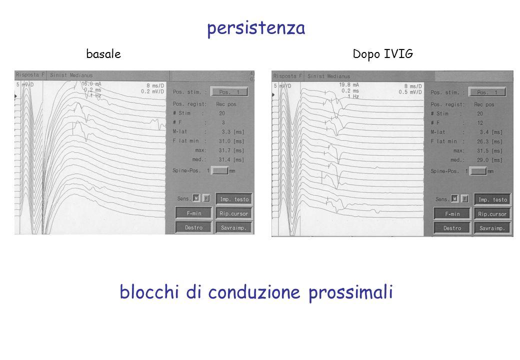 persistenza basaleDopo IVIG blocchi di conduzione prossimali