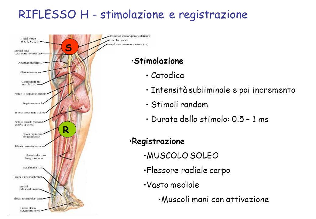 S R RIFLESSO H - stimolazione e registrazione Stimolazione Catodica Intensità subliminale e poi incremento Stimoli random Durata dello stimolo: 0.5 –
