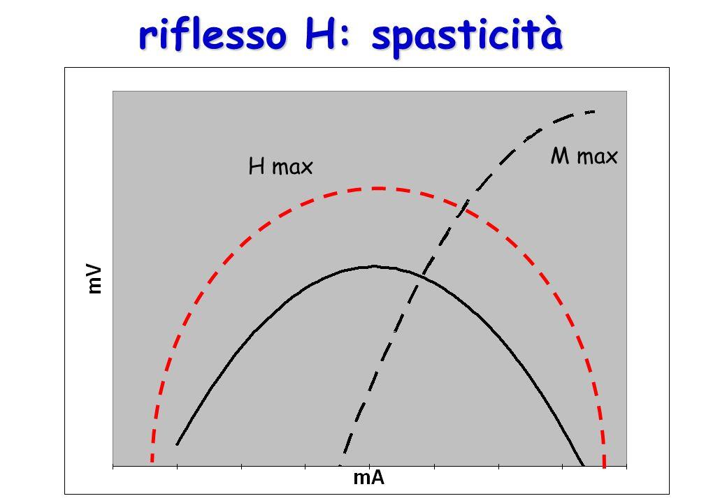 H max M max riflesso H: spasticità