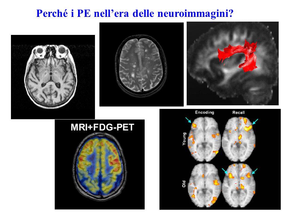 Vantaggi Svantaggi Neuroimmagini Possibilità di individuare aree cerebrali molto piccole, attive in maniera fisiologica e/o patologica (RISOLUZIONE SPAZIALE) 1)Difficoltà nello stabilire lattivazione sequenziale delle strutture cerebrali (RISOLUZIONE TEMPORALE) 2)Difficoltà nel definire qualitativamente le modificazioni nellattività di una certa area cerebrale (inibizione.