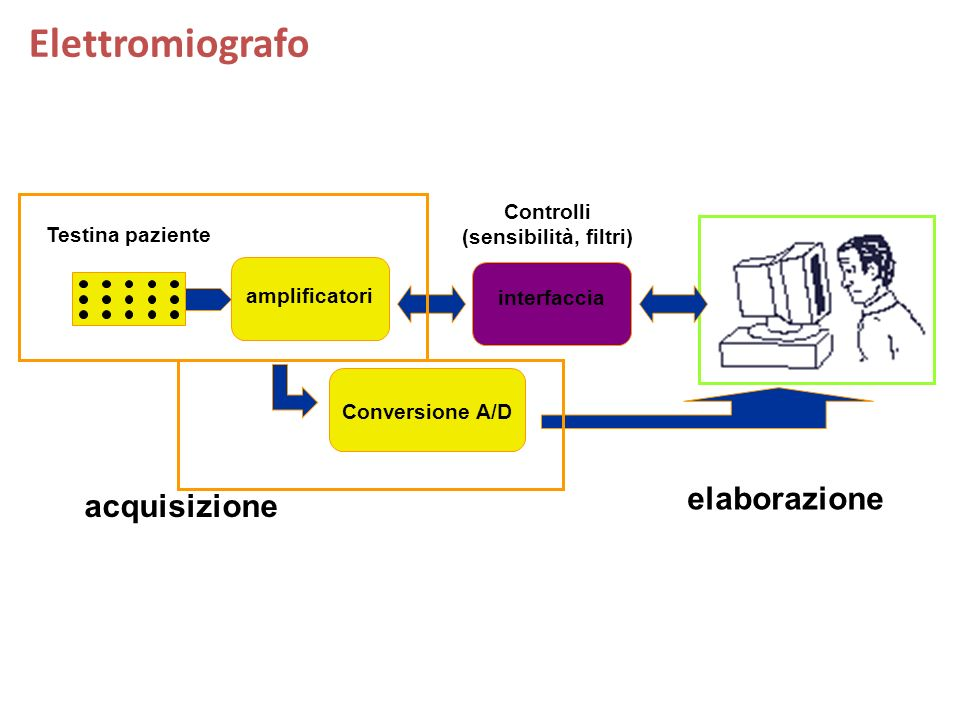 Elettromiografo amplificatori Testina paziente interfaccia Conversione A/D acquisizione elaborazione Controlli (sensibilità, filtri)