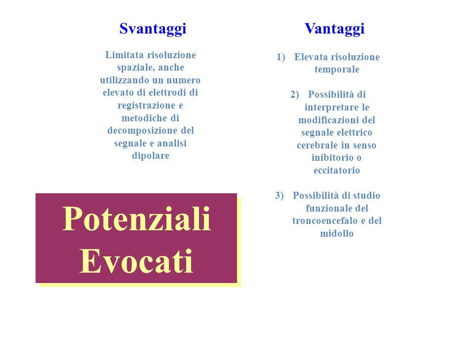 CONVERSIONE ANALOGICO-DIGITALE (A/D)