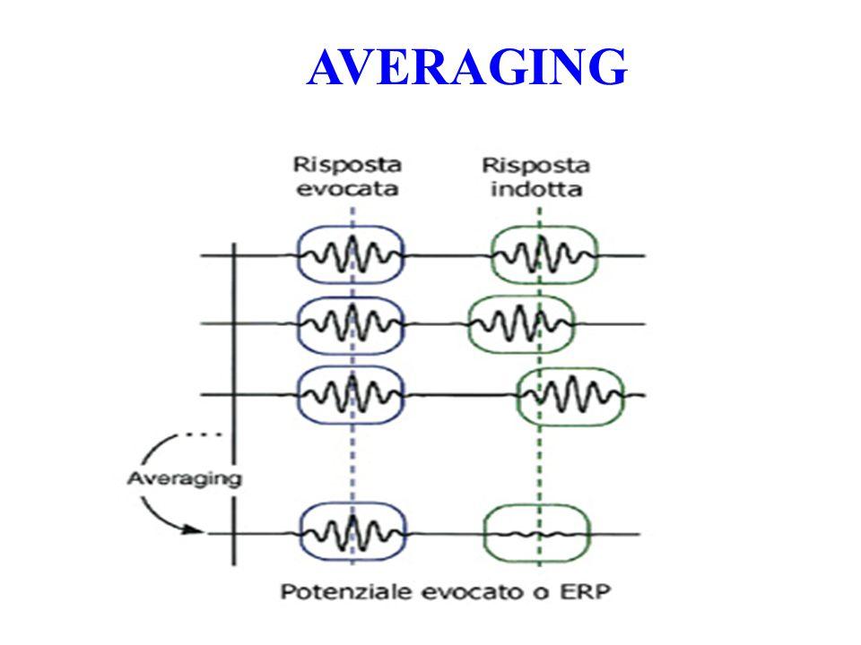 Potenziali Esogeni ed Endogeni I Potenziali Evocati Esogeni sono interamente dipendenti dalle caratteristiche fisiche del segnale afferente (frequenza, intensità, durata) e non sono soggetti a modificazioni collegate allo stato cognitivo (per esempio di attenzione) del soggetto stimolato Sono Potenziali Evocati Esogeni i BAERs, i PES a breve latenza evocati dal midollo spinale (N13), dal troncoencefalo (P14) e dalla corteccia somatosensoriale (N20)