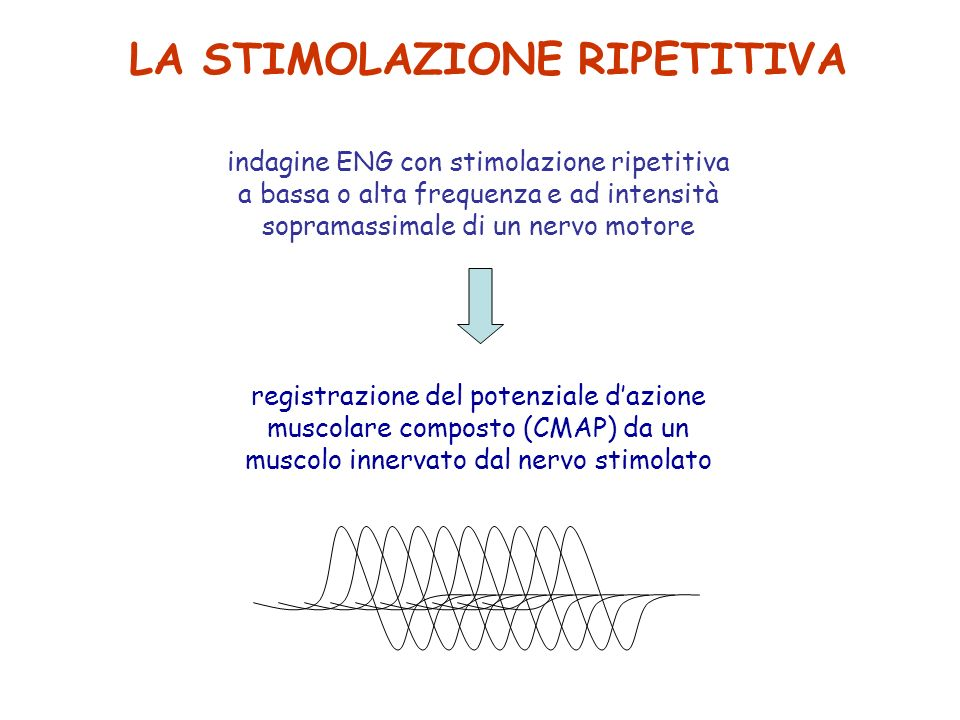 LA STIMOLAZIONE RIPETITIVA indagine ENG con stimolazione ripetitiva a bassa o alta frequenza e ad intensità sopramassimale di un nervo motore registra