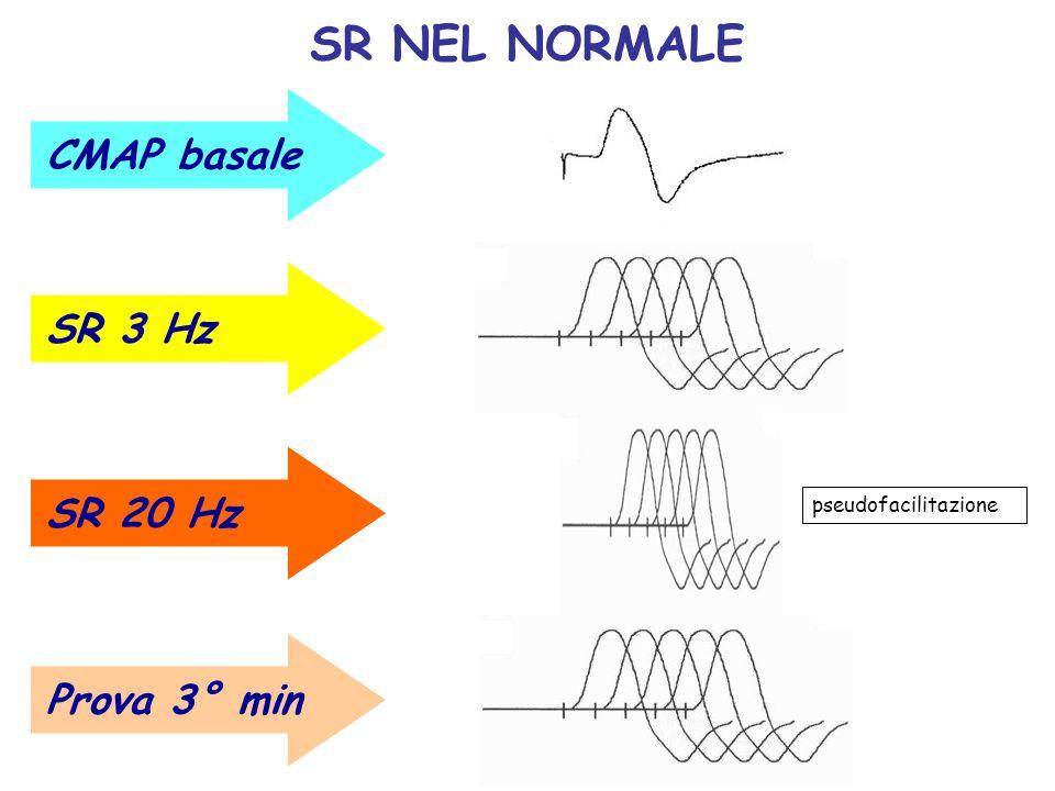 SR NEL NORMALE CMAP basale SR 3 Hz SR 20 Hz Prova 3° min pseudofacilitazione