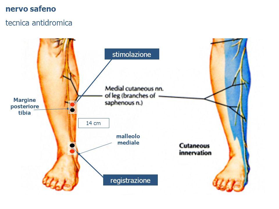 nervo safeno tecnica antidromica stimolazione registrazione malleolo mediale 14 cm Margine posteriore tibia