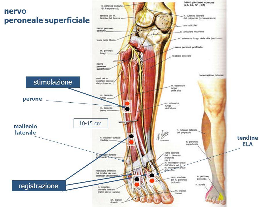nervo peroneale superficiale stimolazione registrazione tendine ELA malleolo laterale 10-15 cm perone