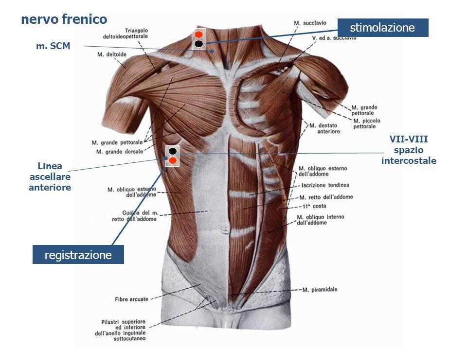 stimolazione registrazione VII-VIII spazio intercostale Linea ascellare anteriore nervo frenico m. SCM