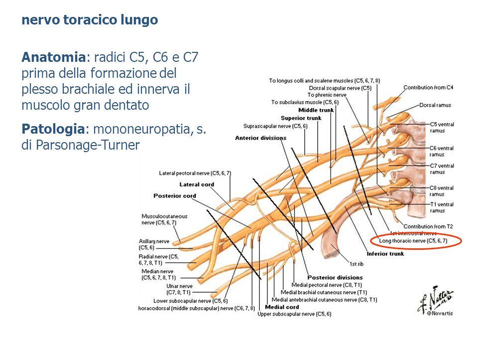 nervo toracico lungo Anatomia: radici C5, C6 e C7 prima della formazione del plesso brachiale ed innerva il muscolo gran dentato Patologia: mononeurop