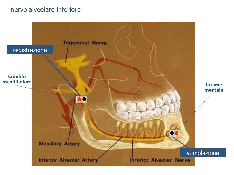 nervo alveolare inferiore stimolazione registrazione forame mentale Condilo mandibolare