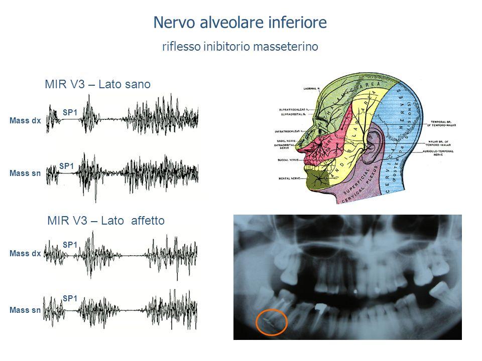 Nervo alveolare inferiore riflesso inibitorio masseterino MIR V3 – Lato sano MIR V3 – Lato affetto SP1 Mass dx Mass sn