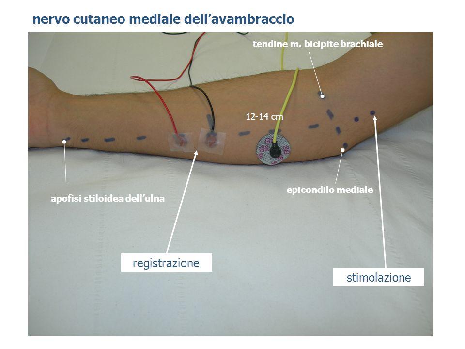 nervo cutaneo mediale dellavambraccio epicondilo mediale apofisi stiloidea dellulna 12-14 cm tendine m. bicipite brachiale stimolazione registrazione