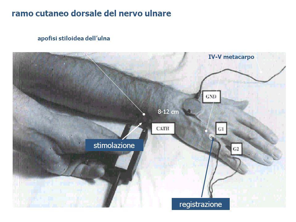 apofisi stiloidea dellulna registrazione stimolazione ramo cutaneo dorsale del nervo ulnare IV-V metacarpo 8-12 cm